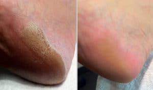 Calluspeeling soin des pieds